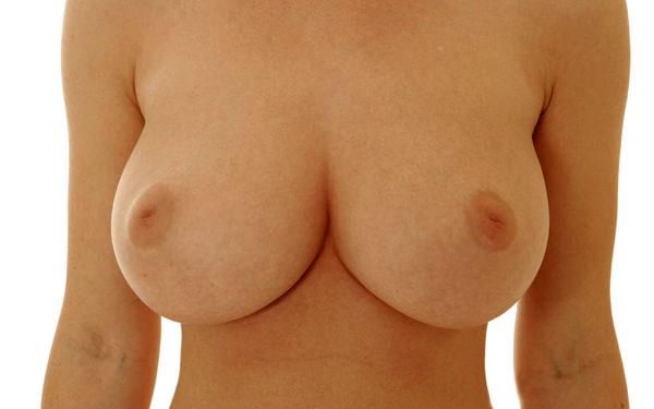 陥没乳首 25