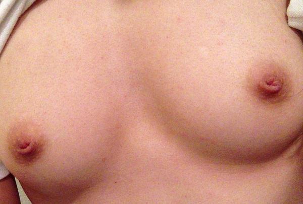 陥没乳首 34