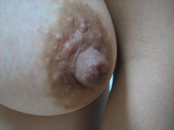 ぶつぶつ(モントゴメリー腺)が凄い乳輪のおっぱい 4