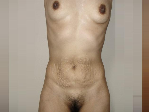 妊娠線がヤバい素人熟女のお腹 12